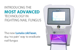 Introducing the most advanced technology in fighting nail fungus. The new Lunula cold laser, the 'no pain' way to eradicate nail fungus.
