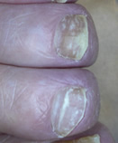 Before Laser Nail Treatment