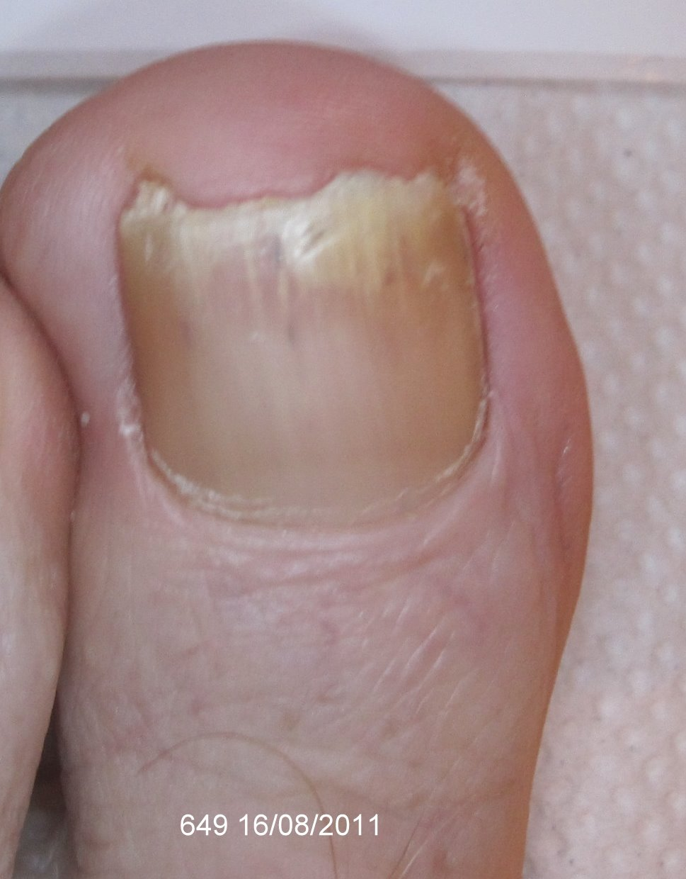 After Laser Nail Treatment